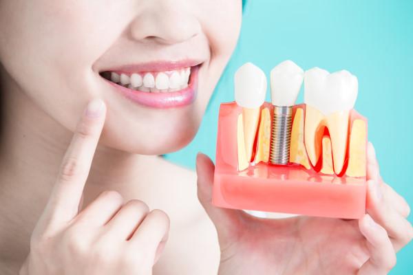 имплантация зуба за 1 день