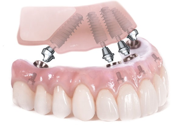 All-On-4_Immediate-dental-Implants.jpg